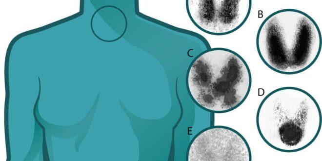 أعراض خمول الغدة الدرقية ونقص الكالسيوم الحاد