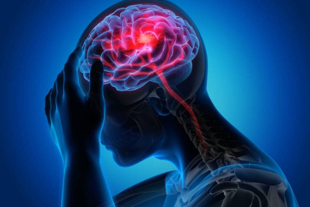 اعراض جلطة المخ المبكرة