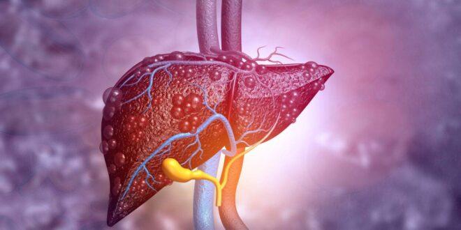 اسماء امراض الكبد