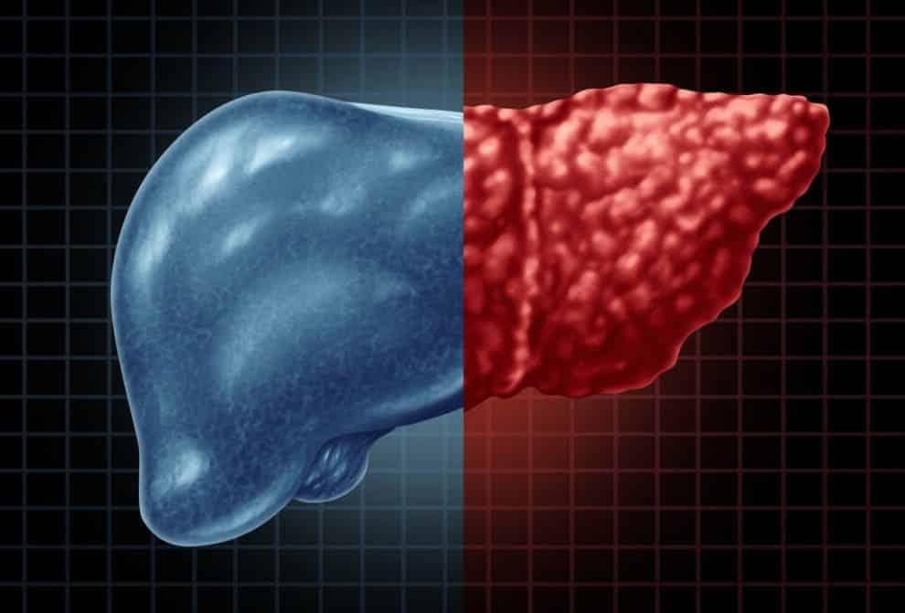 اعراض شحوم الكبد