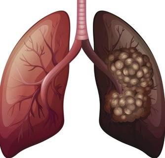 أعراض سرطان الرئة بالتفصيل