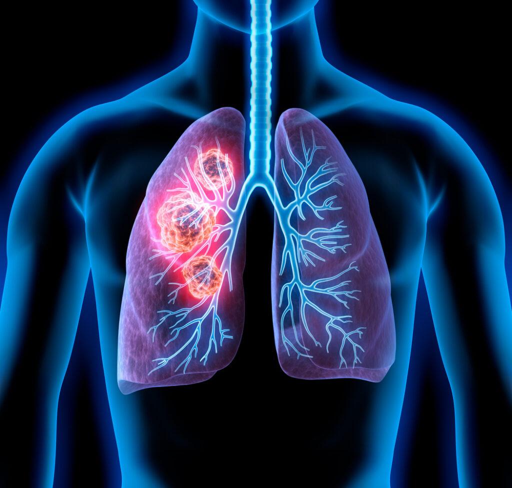 علاج سرطان الرئة المرحلة الرابعة