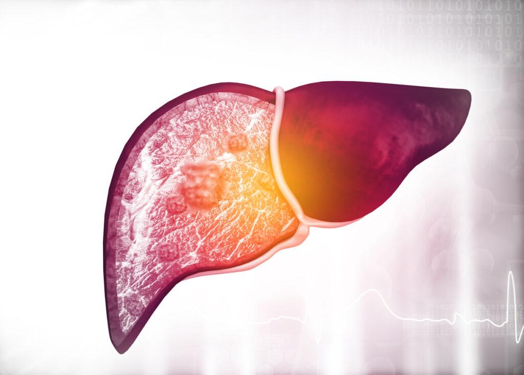 اعراض الاصابة بالتهاب الكبد الوبائي