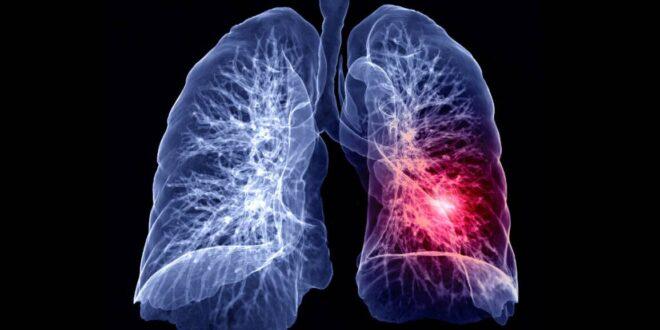 الجديد في علاج سرطان الرئة