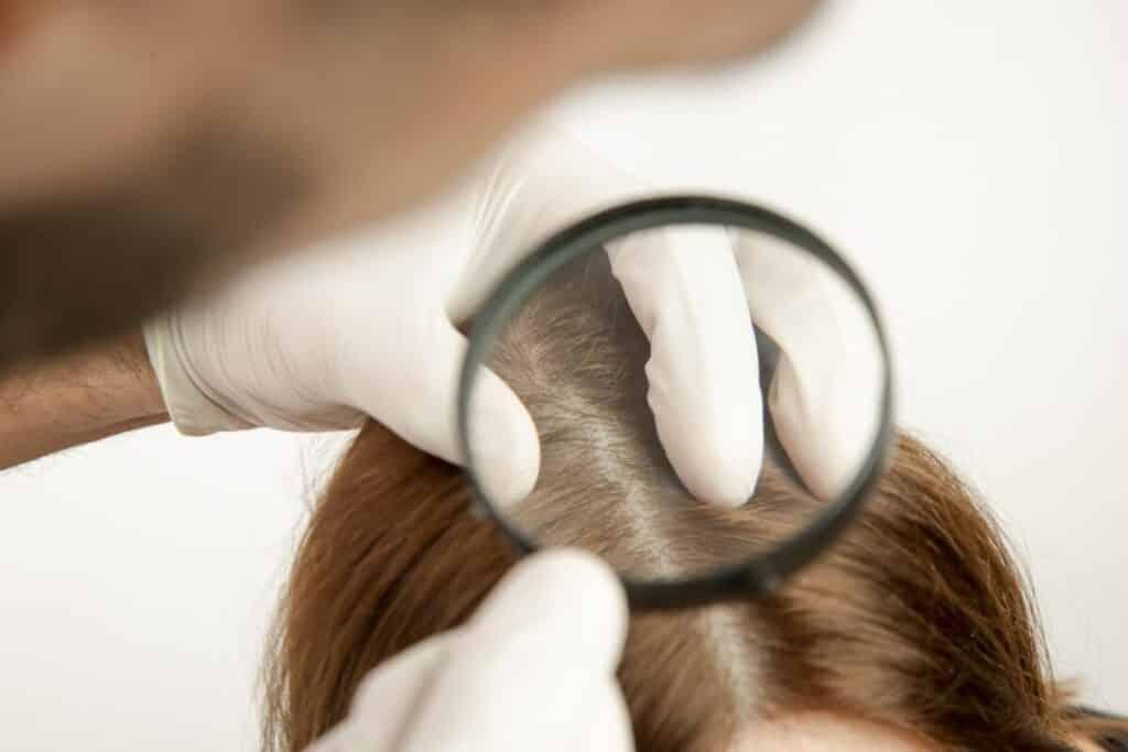 علاج الشعر المحروق من كريم الفرد