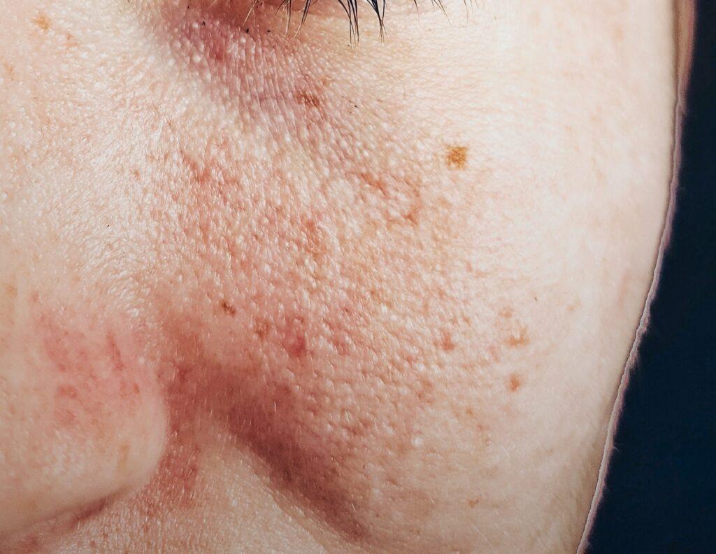 علاج التصبغات بعد التقشير