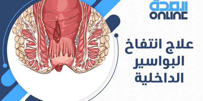 علاج انتفاخ البواسير الداخلية