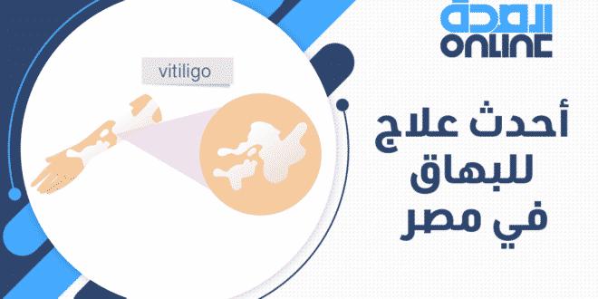 أحدث علاج للبهاق في مصر
