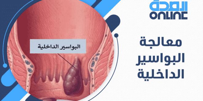 معالجة البواسير الداخلية